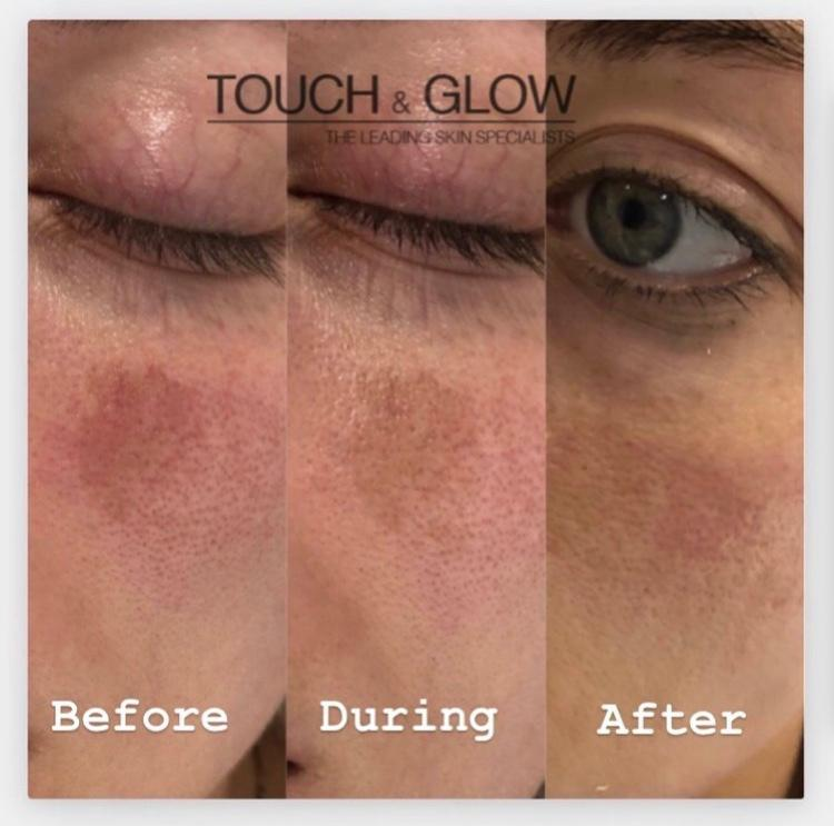 Laser Pigmentation Removal - Touch & Glow Skin And Laser